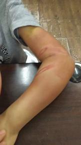 汐止7歲男童混身傷流浪街頭 原因讓人不捨